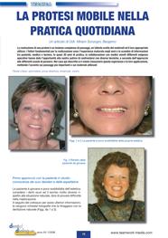 Estratto Dental Dialogue - La protesi mobile nella pratica quotidiana